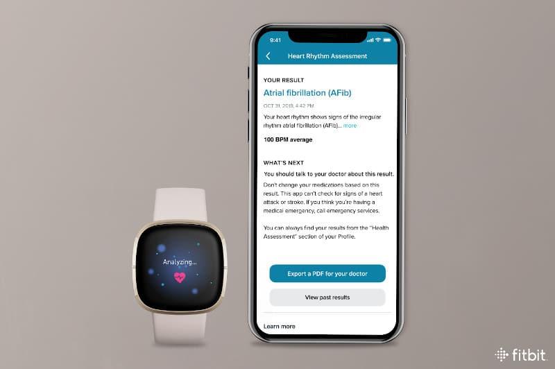 Fitbit Sense ECG toont ECG-resultaat